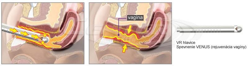 Bison Aphrodite - spevnenie VENUS (rejuvenácia vagíny)