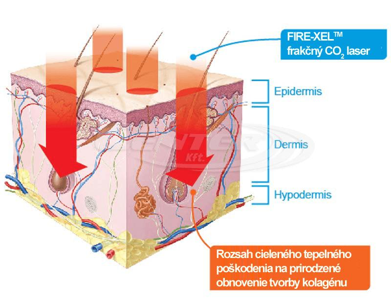 BISON FIRE-XEL CO2 laser treatment