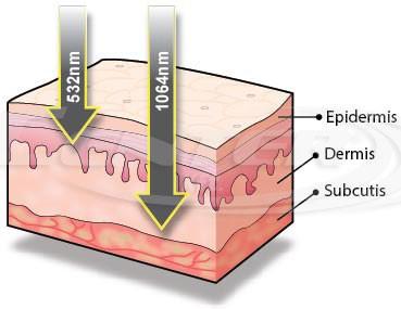 BISON Lucid Q-PTP™, Q-Switched Nd:YAG laser, treatment depth